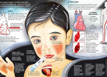 Síndrome-de-kawasaki-imagem-9
